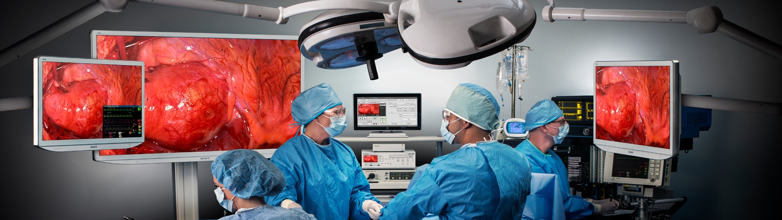 Surgery being performed in an operating room with multiple displays