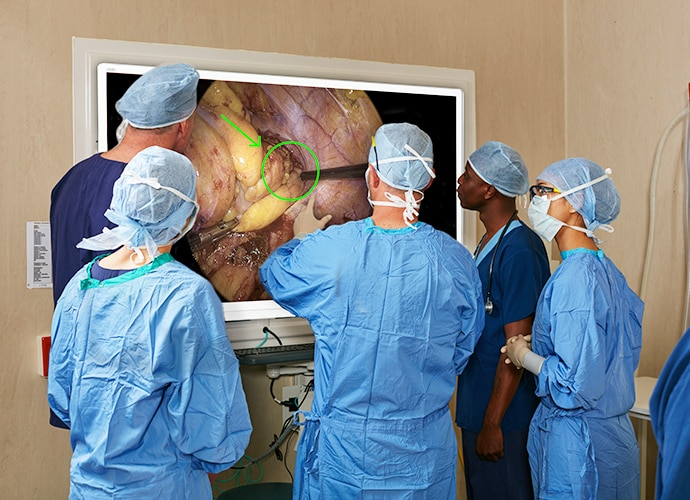 Doctors crowded around a wall-mounted television, looking at an annotated surgical image
