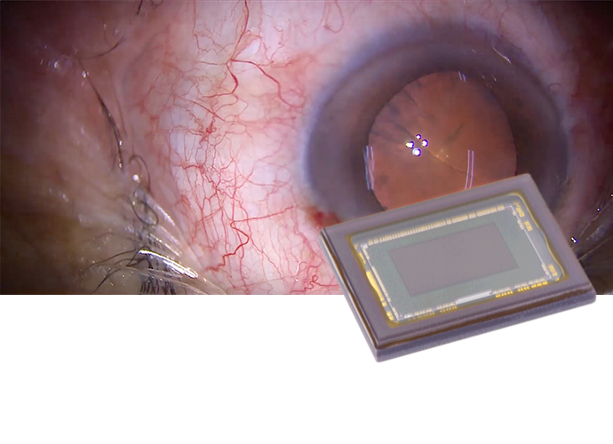Image of a eye surgery with Exmor™ R CMOS sensors overlayed.