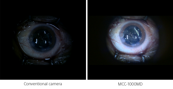 Comparison shot of eye surgery image from an conventional camera vs the MCC-1000MD.