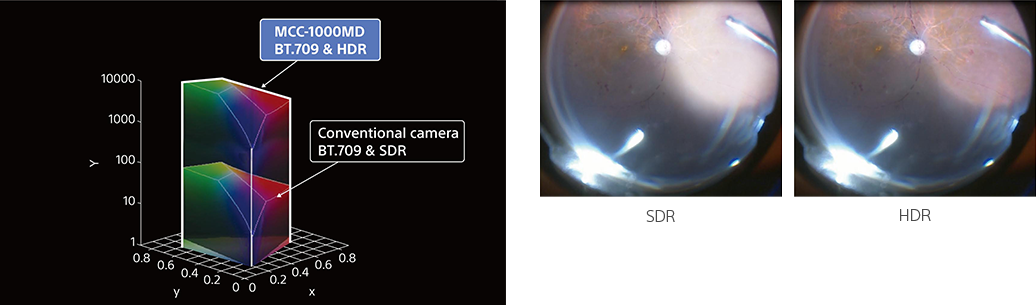 Comparison showing the enhancement to surgical imagery under HDR mode.