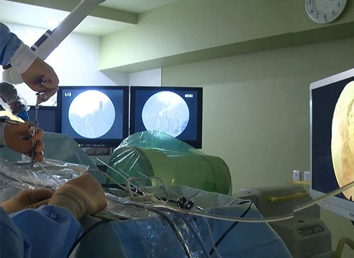 A surgeons view of twin monitors displaying endoscopic image from across the hospital bed during an surgery