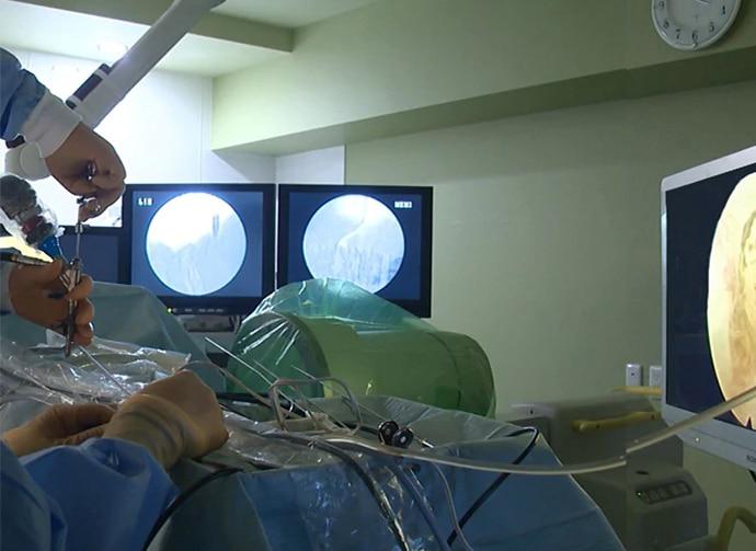 Vista de un cirujano de dos monitores gemelos con imágenes endoscópicas desde el otro lado de una cama de hospital durante una cirugía