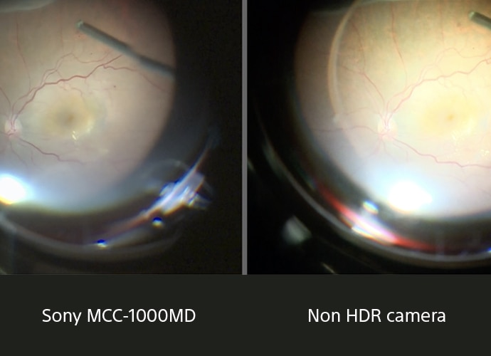 Comparative image of human cornea seen through MCC-1000MD clearly showing more details then the same image seen through a non-HDR camera