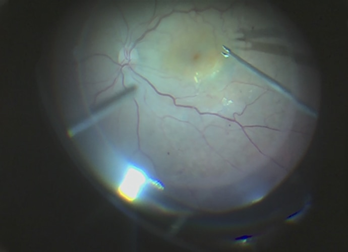 Human cornea in low light seen through the MCC-1000MD's low-light sensitive lens still looks just bright enough to see the details