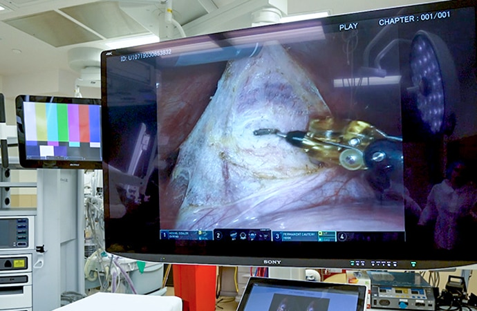 Robotic surgery being viewed in Sony's 55 inch 4K 3D monitor LMD-X550MT