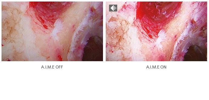 Comparative endoscopy image showing difference with AIME switched on