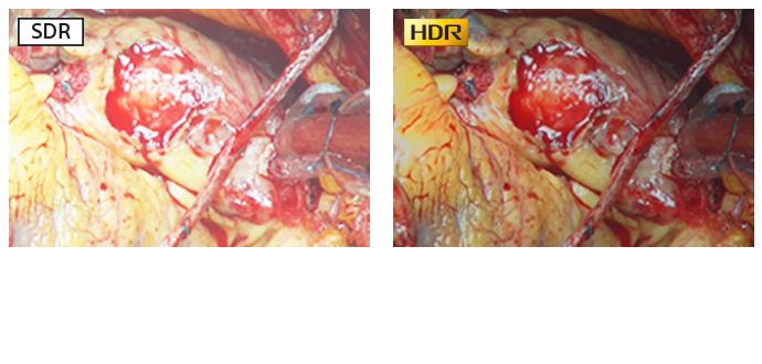 Imagem cirúrgica comparativa mostrando a diferença entre o SDR e HDR