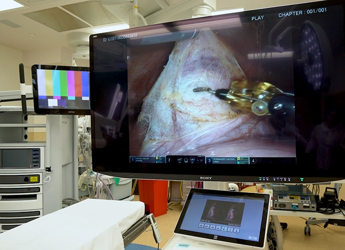 Sony's LMD-X550MT large 4K 3D monitor showing footage from the surgery